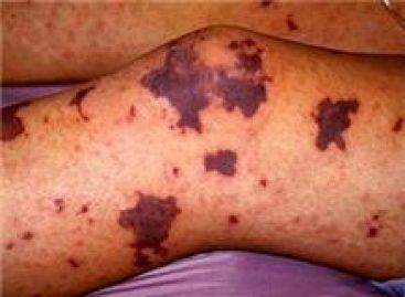 Púrpura trombocitopénica enfermedad que se presenta en niños y adultos