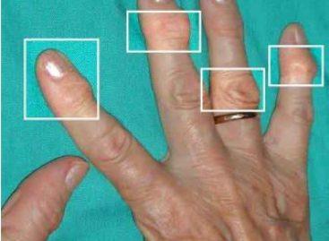 Afecta artritis reumatoide a mujeres jóvenes; tres de cada cuatro enfermos son del sexo femenino