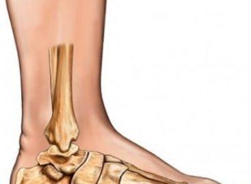 Tratamiento temprano de pie plano en niños evita daño músculo esquelético
