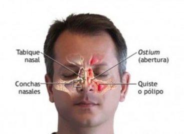 ¿Dificultad para respirar? puede deberse a pólipos nasales: Especialistas del IMSS