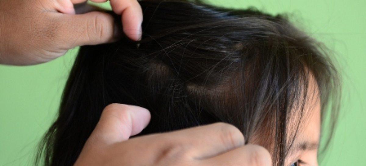 Pide Servicios de Salud de Oaxaca revisión constante para detectar brotes de piojos