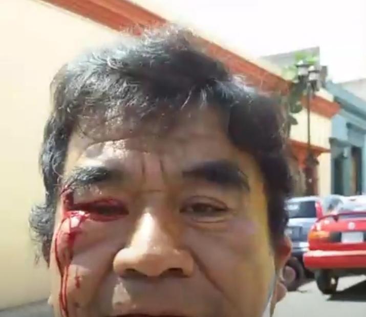 Denuncian agresión a reporteros cuando cubrían cierre de calles frente a la Secretaría de Salud del gobierno de Oaxaca, por empleados de funerarias que exigen operar crematorios sin cubrir reglamento sanitario.