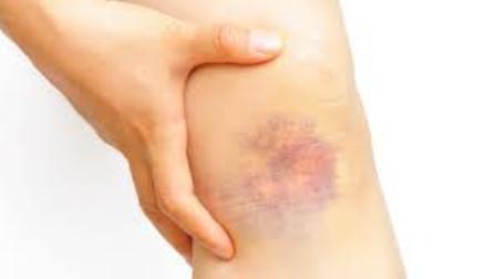 Hematomas sin razón pueden deberse a problemas serios de salud: IMSS