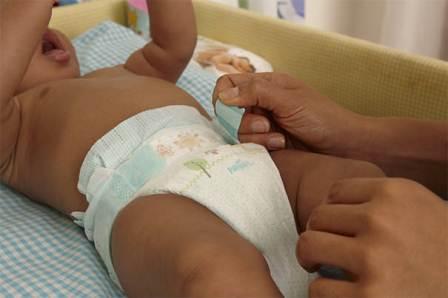 En temporada de calor, menores de 15 meses de edad más sensibles a dermatitis por pañal: IMSS