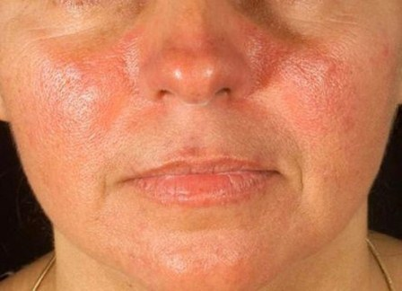 Tratamiento para controlar el lupus